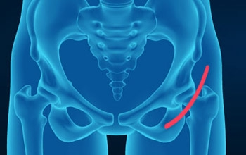 Benefits of Anterior Approach Hip Replacement