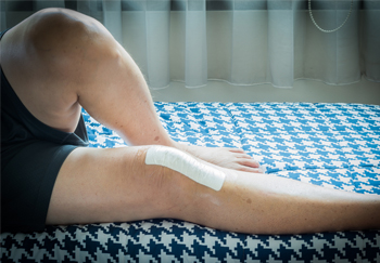 Caring for Your Incision and Changing Your Dressing after Surgery