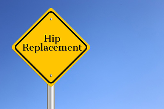 What Are Signs of Needing a Hip Replacement?