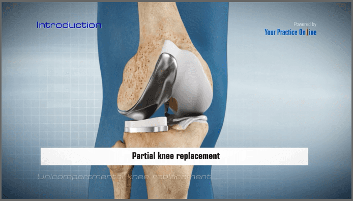 Total Knee Replacement Sterling Heights | Partial Knee